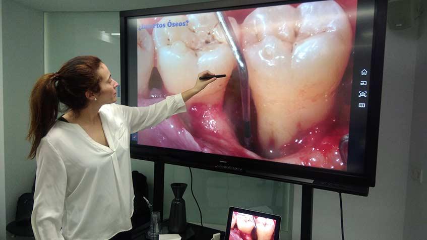 Terapia Periodontal Quirúrgica