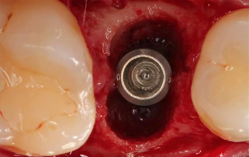 Manejo del Alveolo Post- Extracción en el Sector Anterior Estético
