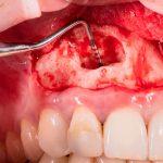 Autotransplantes Dentales y Cirugía Endodóntica