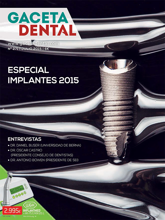 Portada Especial Implantes 2015 Gaceta Dental julio