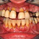 Caso clínico 6