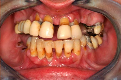 Before-Regeneración periodontal