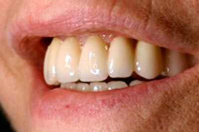 After-Regeneración periodontal
