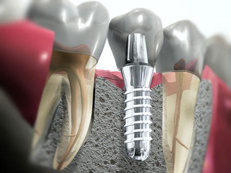 que es un implante