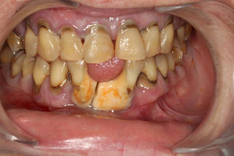 Qué es la Periodontitis