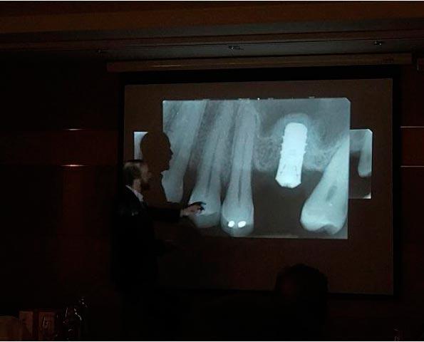 Abr Ponencia del Dr. Daniel Rodrigo en Fuerteventura