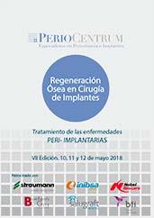 Regeneración Ósea en Cirugía de Implantes