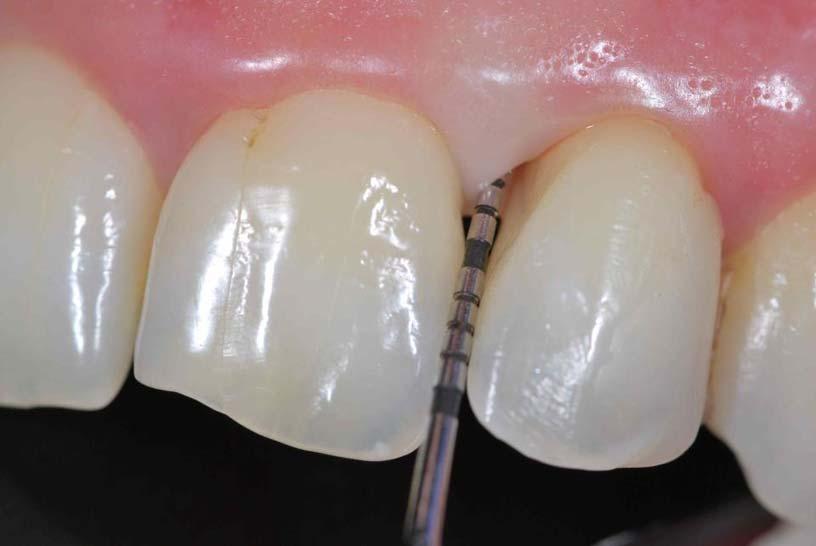 tratamiento periodontitis