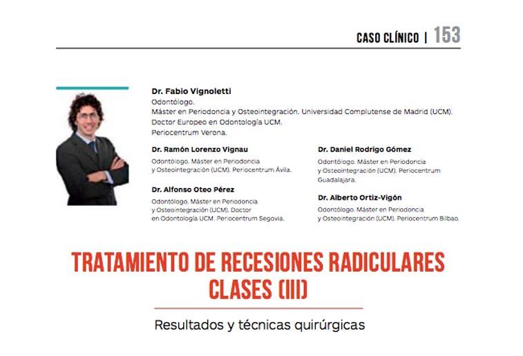 Artículo PerioCentrum en la revista especializada Gaceta Dental