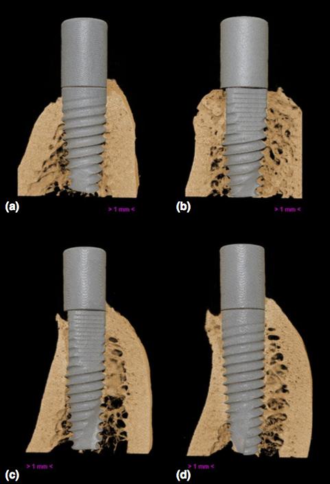 La revista Journal of Clinical Periodontology ha publicado un nuevo artículo en el que participa el doctor Fabio Vignoletti