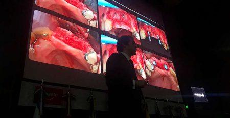 El Dr. Eduardo Montero en la conferencia de Regeneración Ósea en el Congreso Internacional de la Universidad de Buenos Aires