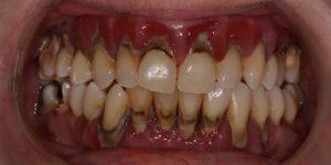Relación entre la periodontitis y el cáncer gastrointestinal
